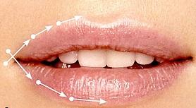 Линейная техника иглой увеличения губ