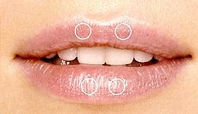 Капельная техника увеличения губ