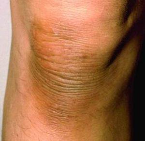 Черный акантоз на колене