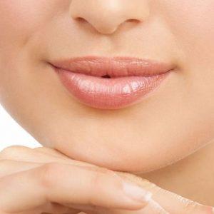Верхняя губа после элос-эпиляции