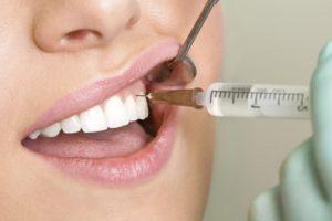 Введение анестетика в десна