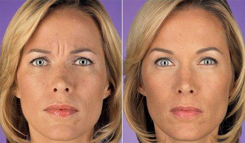 женщина лицо межбровка фото до и после