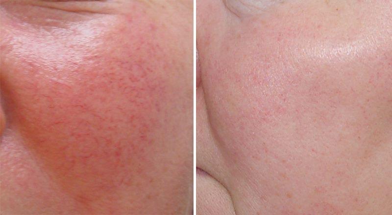купероз фото до и после лечения в домашних условиях