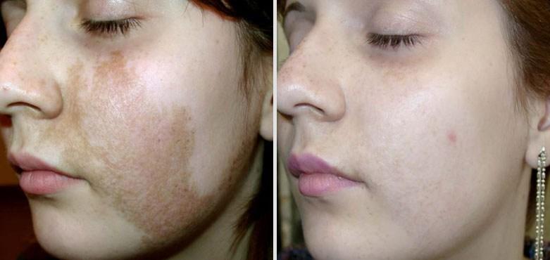 пигментация лечение_фото до и после