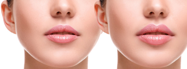 красивые губы до и после увеличения