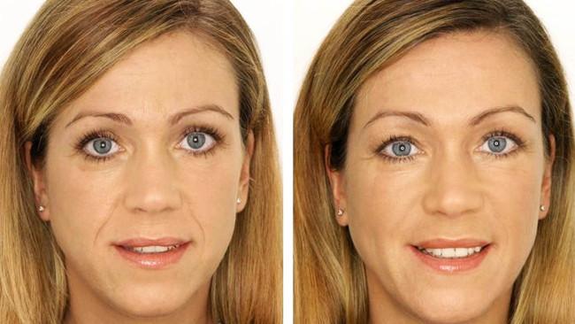 микротоки фото до и после
