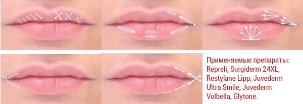 увеличение губ схема процедуры, препараты