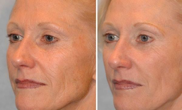 микротоки 2 фото до и после