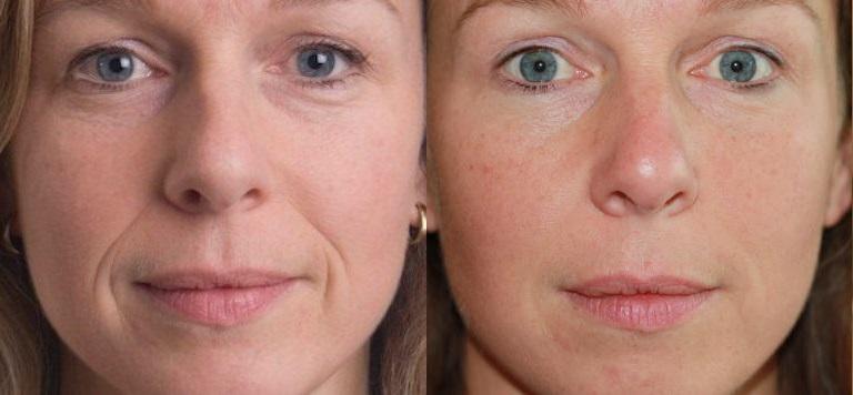 солкосерил фото до и после применения