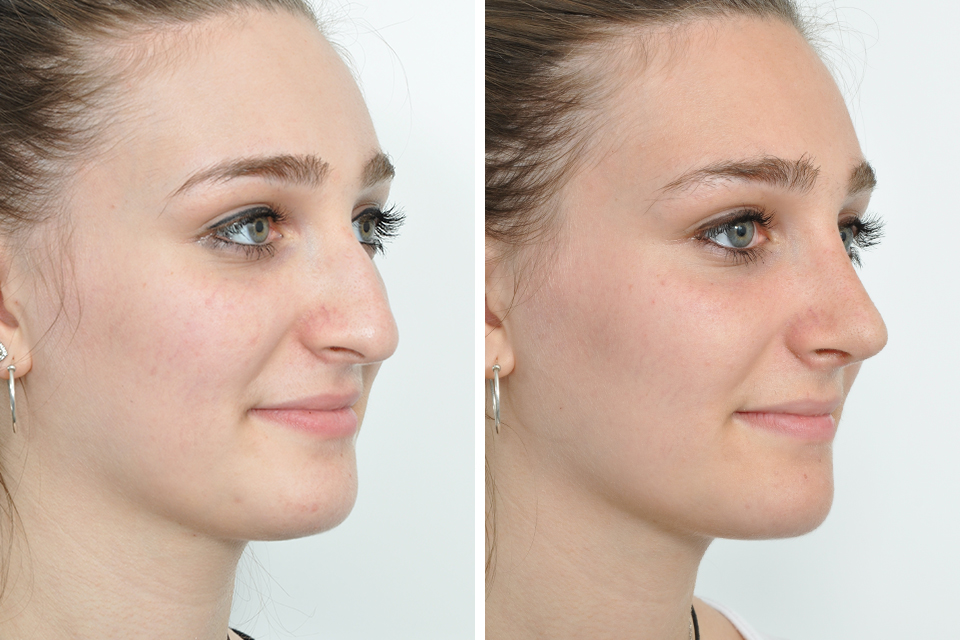 девушка в профиль до и после ринопластики
