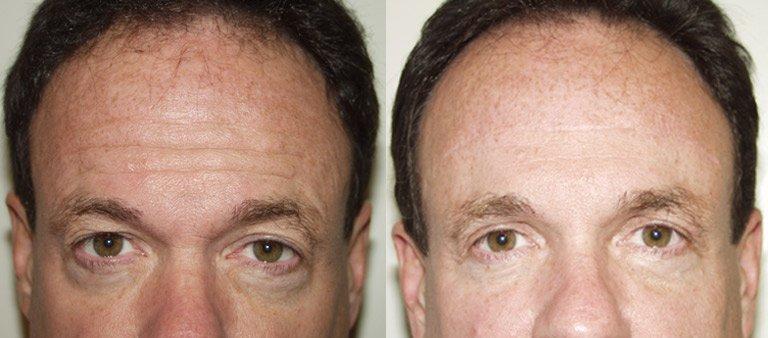 мужчина лоб фото до и после Ботокса