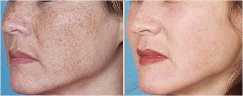 фото до и после процедуры от пигментации