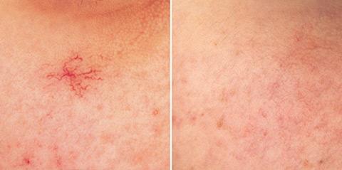 фотоомоложение купероз фото до и после