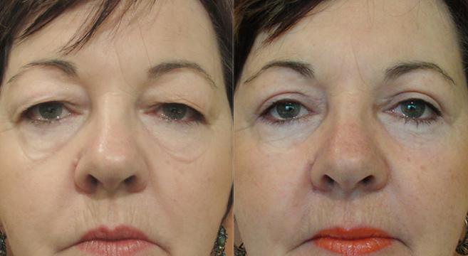 тяжелые глаза фото до и после