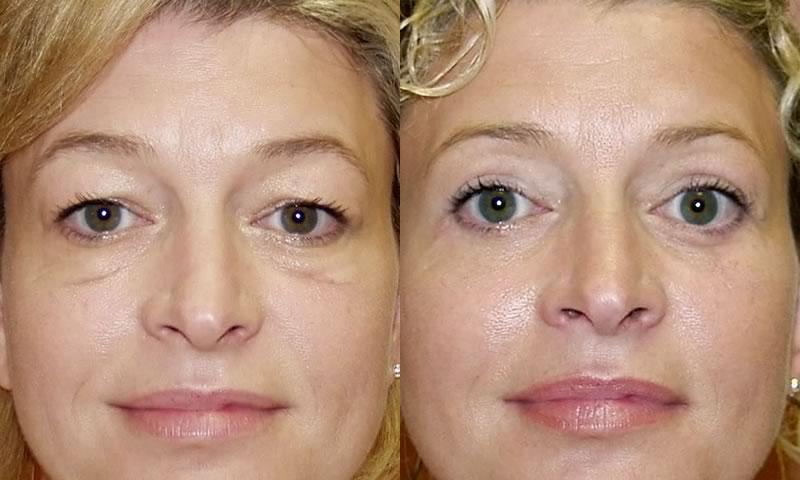 фото женщины до и после блефаропластики