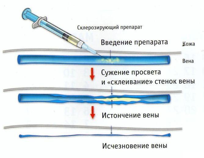 схема введения препарата