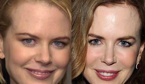 Николь Кидман фото до и после