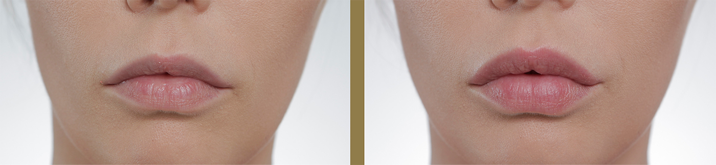 ювидерм ультра 3 фото до и после