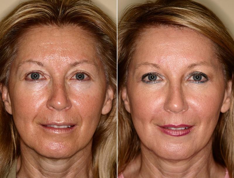 рф лифтинг до и после лицо женщины
