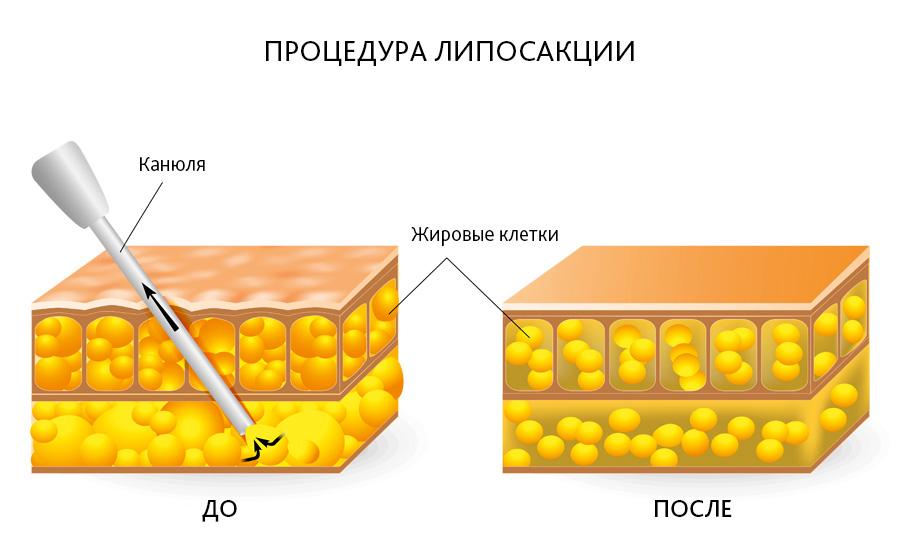 схема до и после липосакции