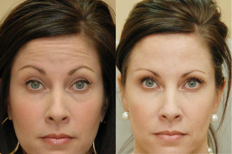 фото до и после брюнетки