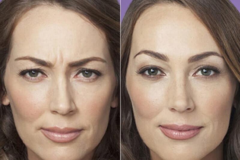 фото до и после диспорта