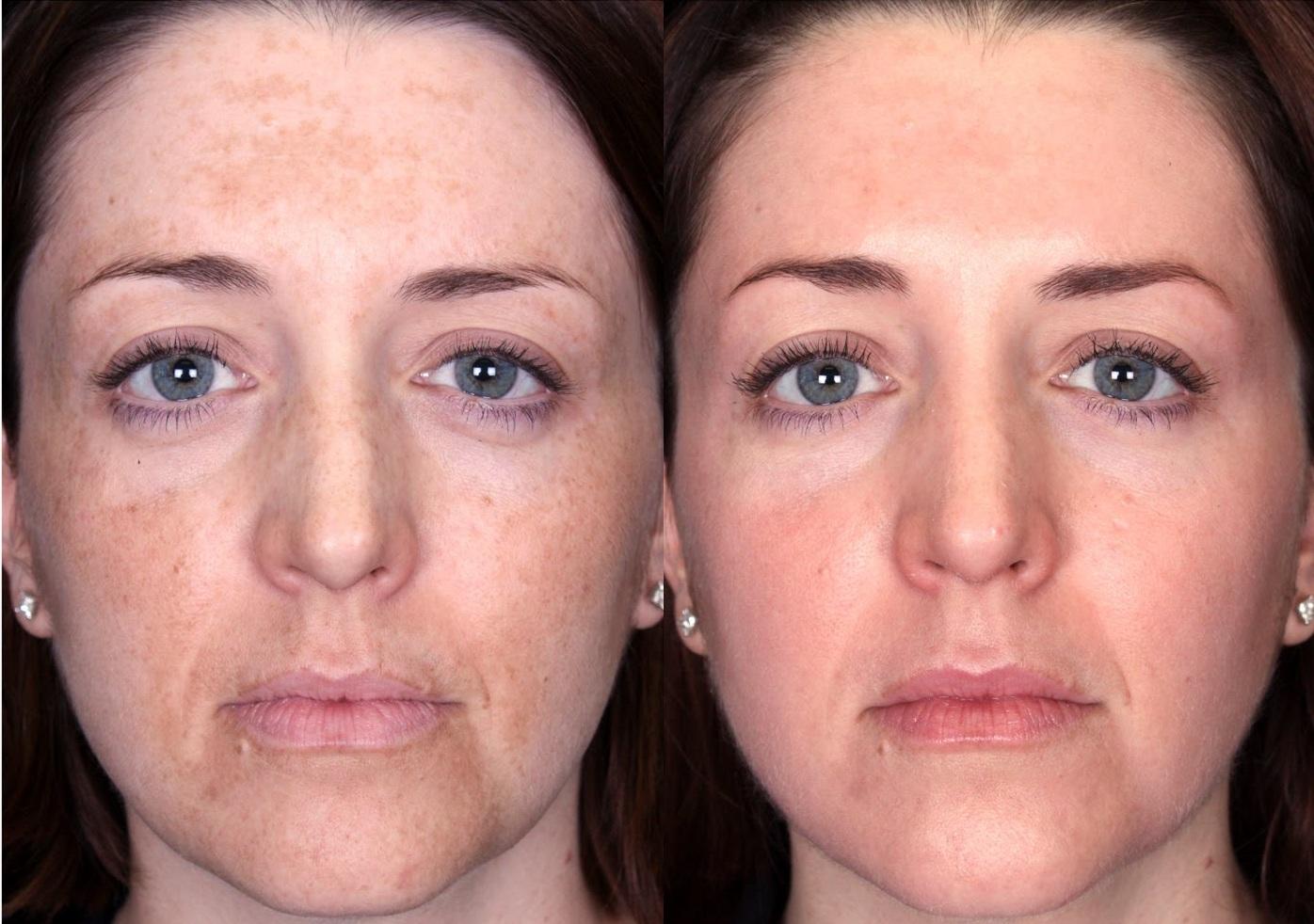 лицо после пилинга фото до и после