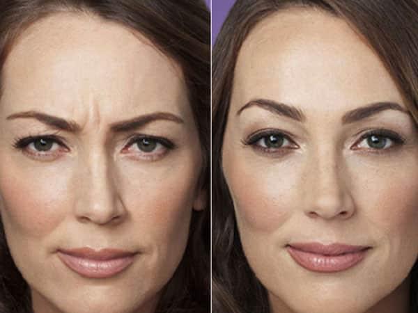 фото до и после девушки
