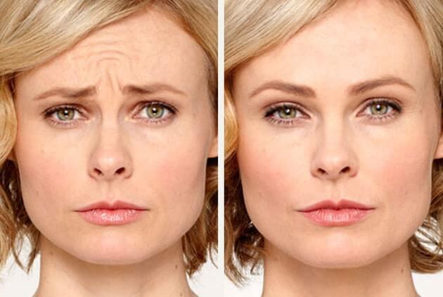 фото до и после блондинка