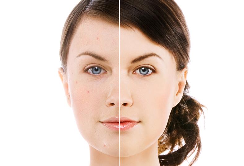 фотоомоложение фото до и после