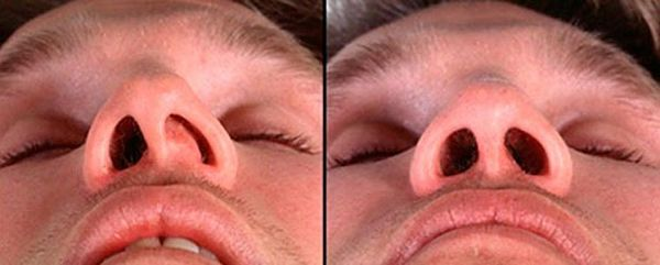 исправление носовой перегородки фото до и после