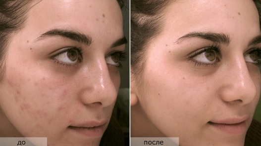 лицо девушки после пилинга фото до и после