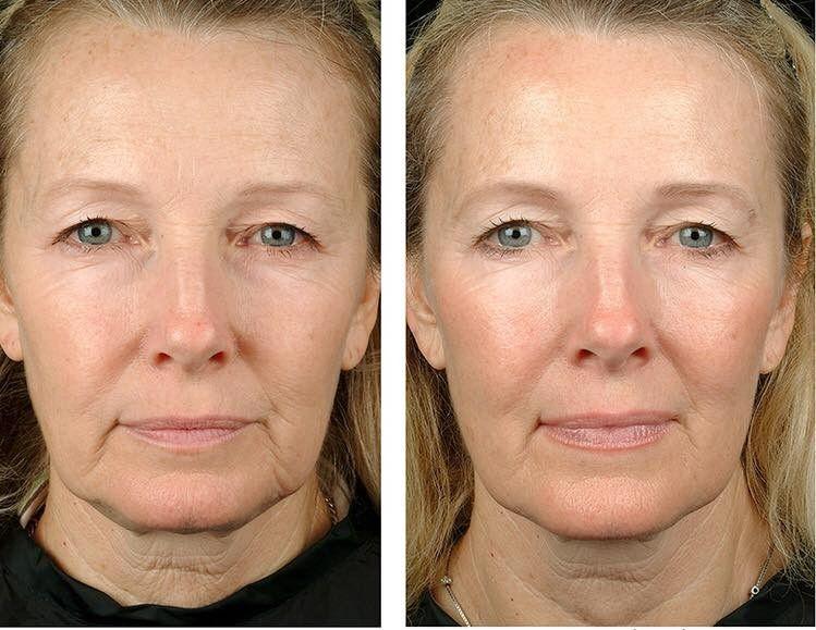 фото до и после первой процедуры