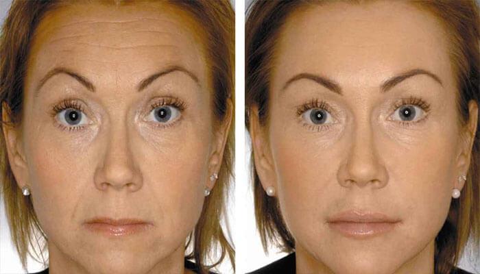фото до и после женщина
