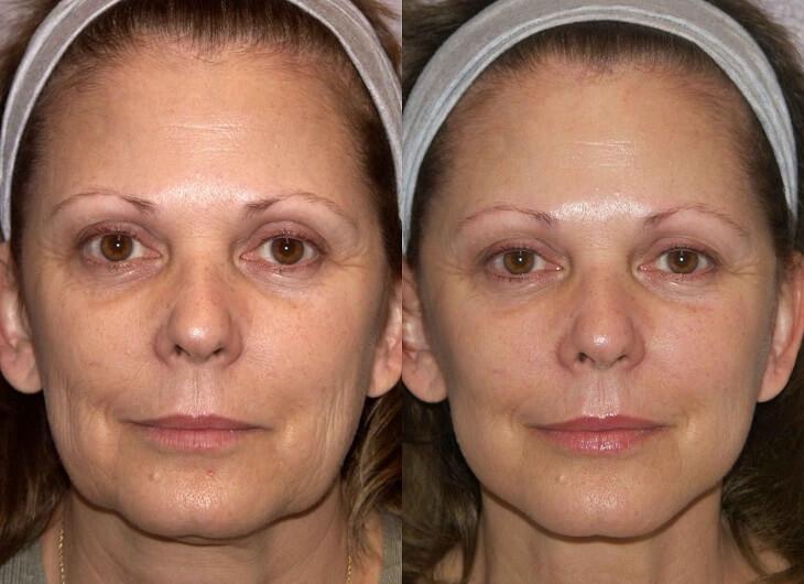 рф лифтинг фото до и после женское лицо