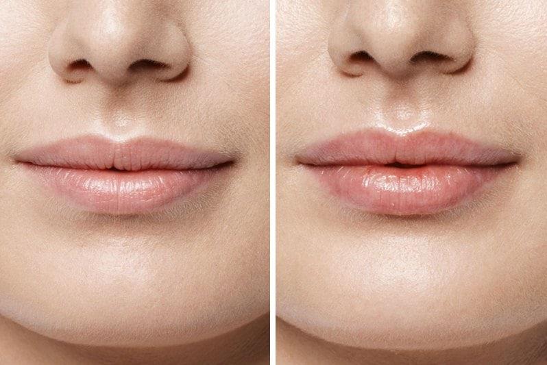 губы до и после