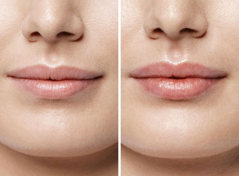 губы фото до и после
