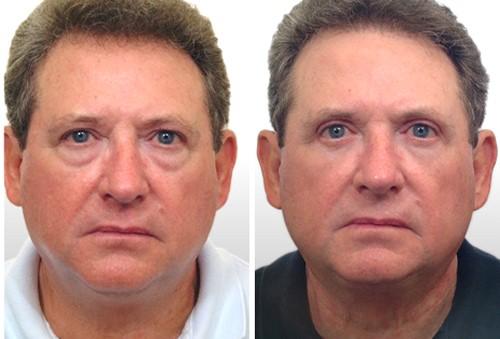 мужчина фото до и после