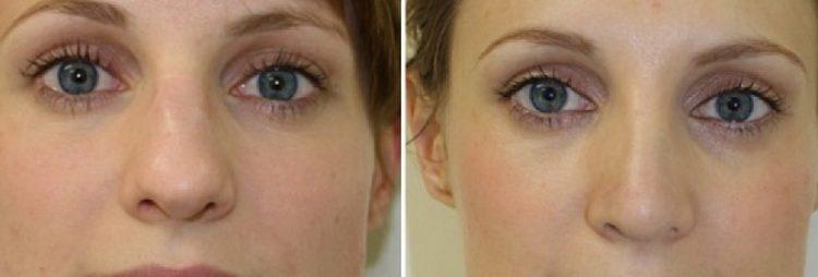 фото до и после уменьшения носа