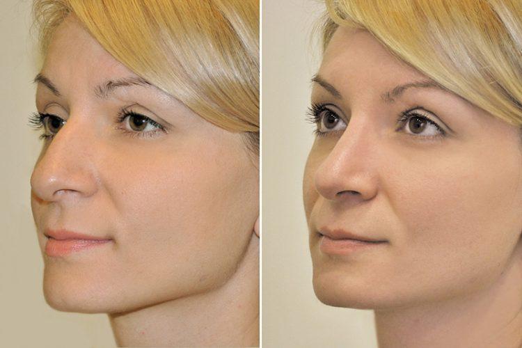девушка на фото до и после, нос меньше