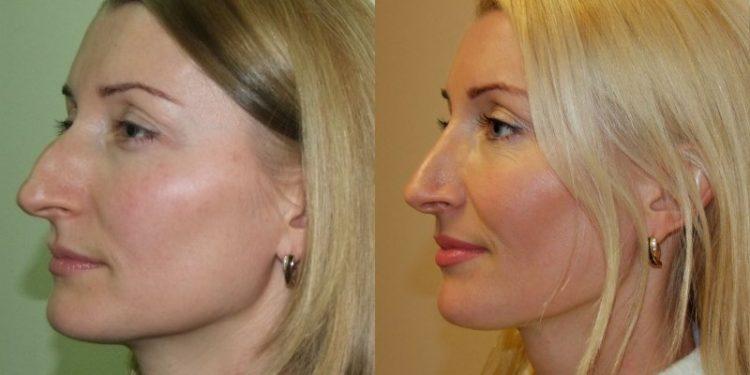 блондинка в профиль до и после операции на нос