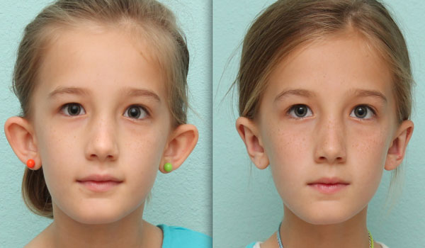 девушка с торчащими ушами и нет