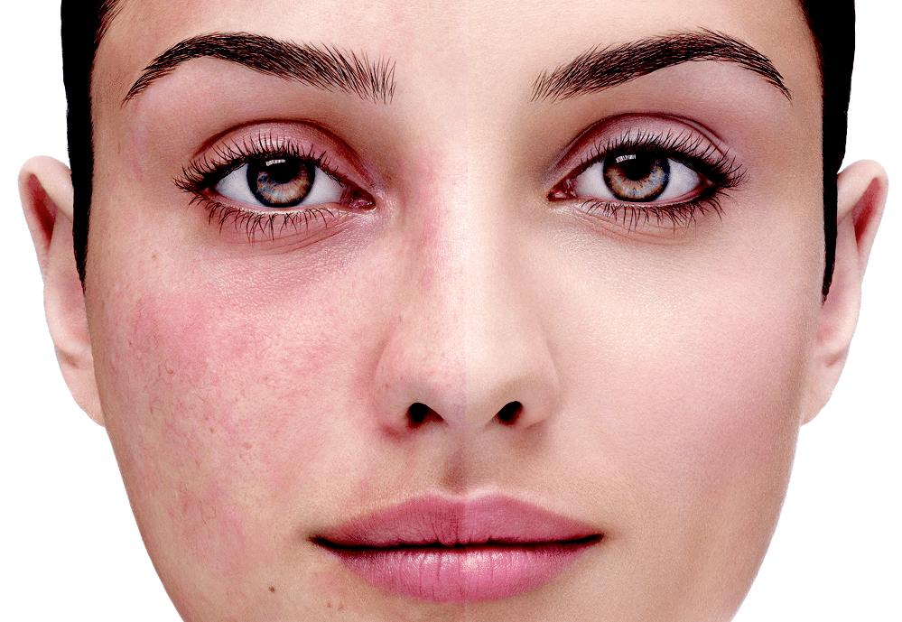 девушка анфас с краснотой на лице