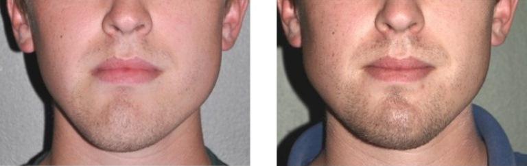 реконструктивная пластическая хирургия лица до и после
