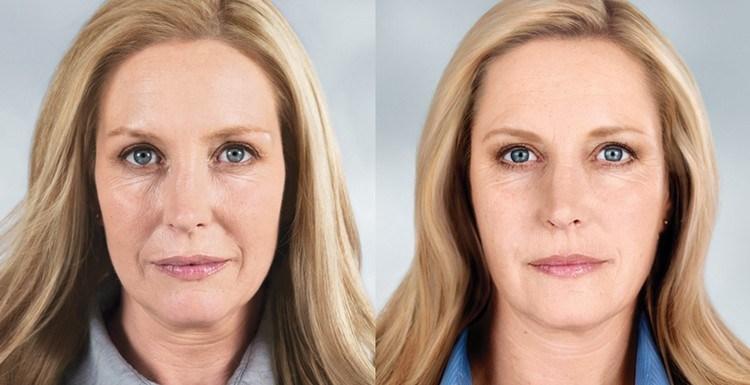 фото до и после омоложения блондинки