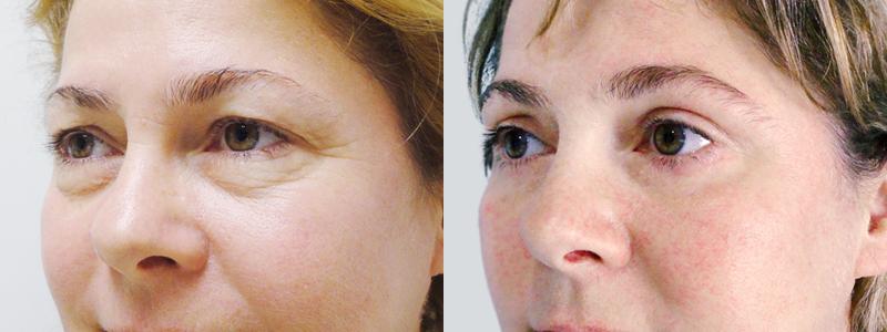 фото до и после блефаропластики женщины