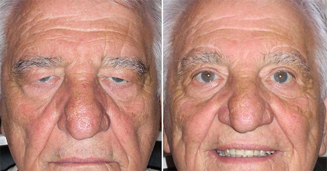 фото до и после блефаропластики пожилого мужчины