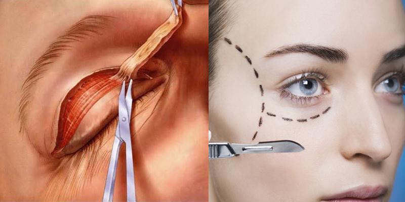 картинка проведения операции и пунктир на лице