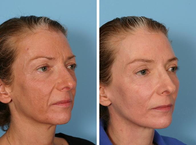 до и после фракселя лицо женщины