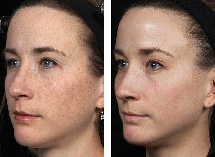 до и после лазера фото девушки